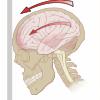 concussion-254x300